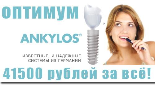 Имплантация зубов ОПТИМУМ - Не дорого!